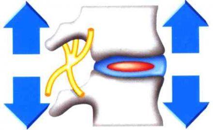 Растягивающий пояс Доктор Диск Dr.Disk для поясницы